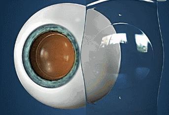 近视患者的福音—ICL晶体植入,作用原理,优缺点,一次性讲清楚