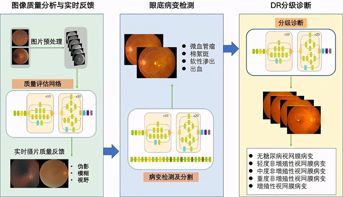 贾伟平教授团队研发人工智能系统DeepDR 精准识别糖尿病视网膜病变